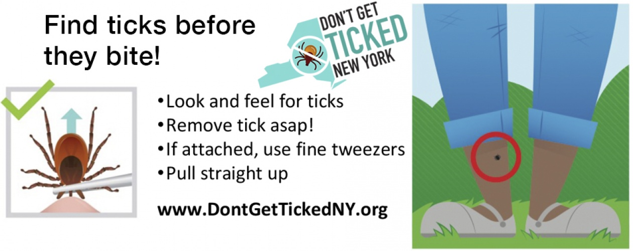 Find ticks before they bite! Look and feel for ticks. Remove tick ASAP! If attached, use fine tweezers. Pull straight up. Picture of tick, embedded in skin, being pulled straight up by pointy tweezers. Don't Get Ticked NY logo. Images of a person's lower legs, with a tick near the ankle.